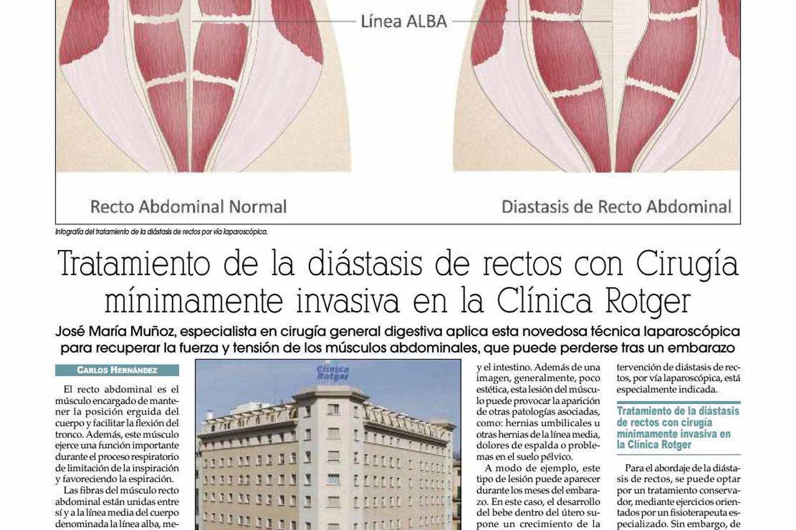 Cirugía Mínimamente Invasiva para el tratamiento de la Diástasis de Rectos en Clínica Rotger