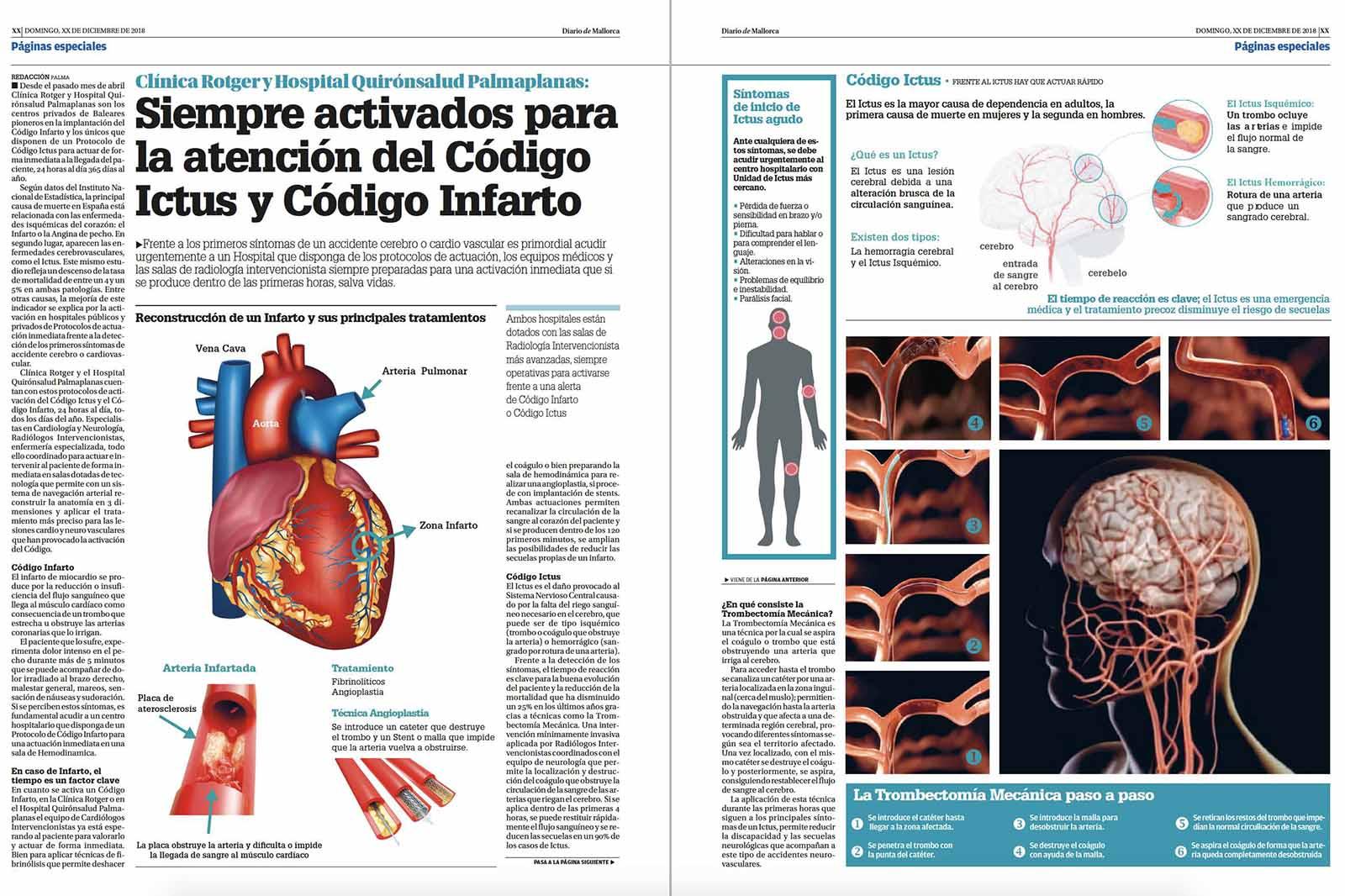 Clínica Rotger y Hospital Quirónsalud Palmaplanas pioneros en Código Infarto y Código Ictus