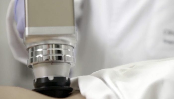 Dermatología-Tratamiento-Laser-Clínica-Rotger-Hospital-Mallorca