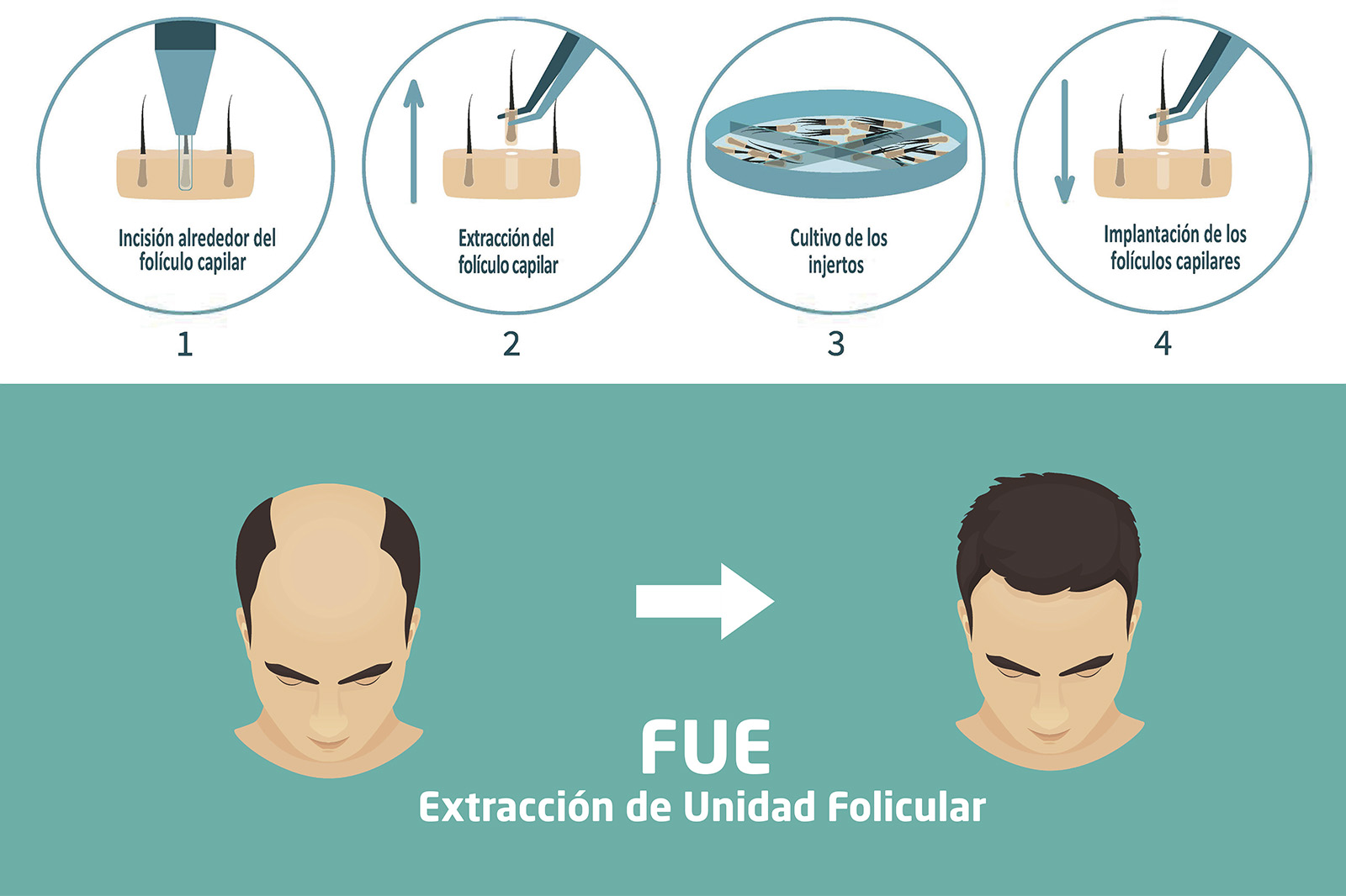 Implantes-Capilares-Técnica-FUE-Clínica-Rotger-Hospital-Mallorca