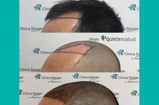 Implantes-Capilares-Clinica-Rotger-Hospital-Mallorca