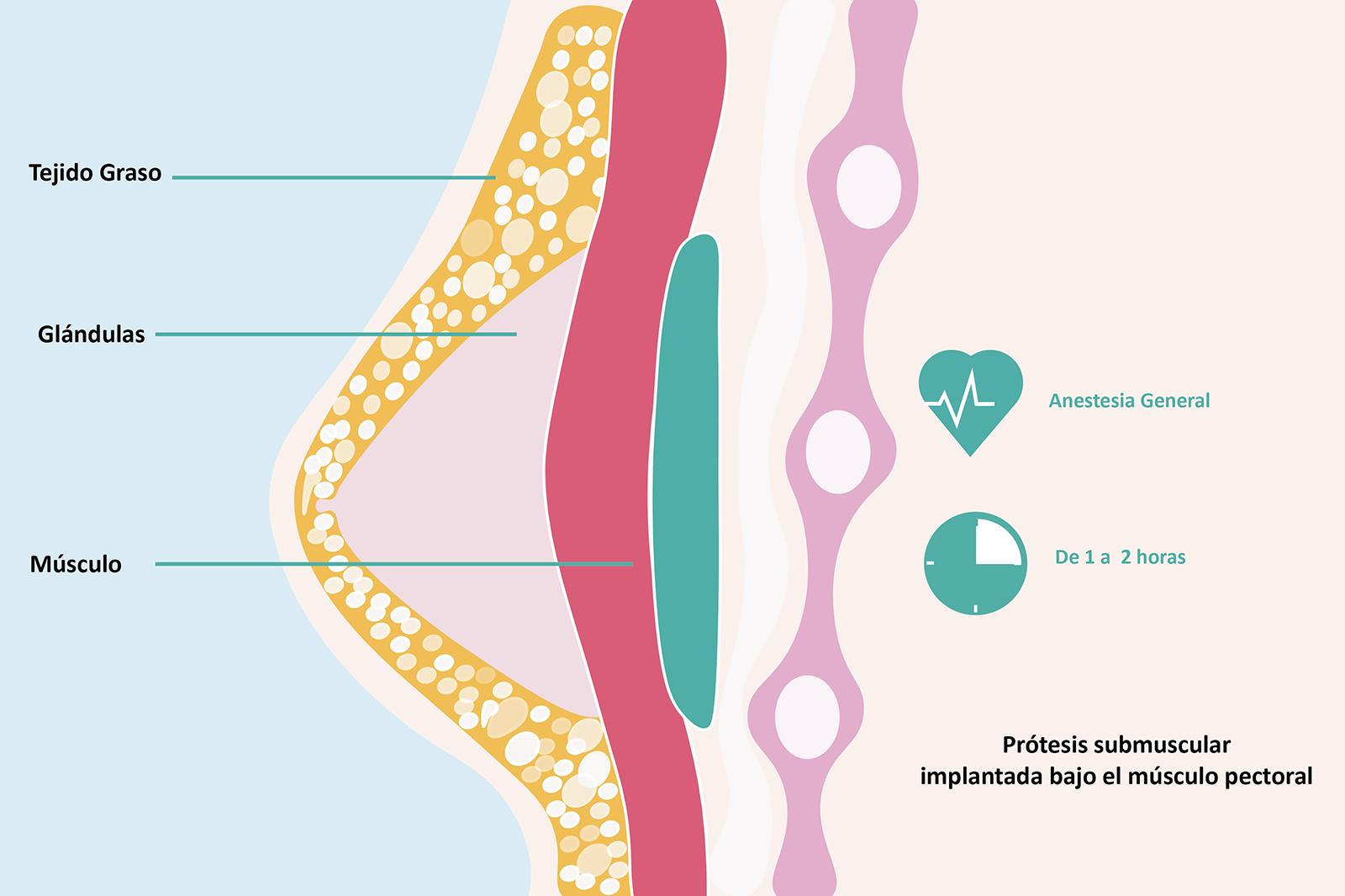 Mamoplastia-Cirugía-Plástica-Clínica-Rotger-Hospital-Mallorca