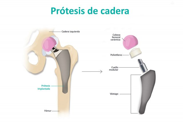 Prótesis-Cadera-Clínica-Rotger-Hospital-Mallorca