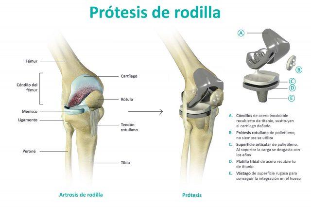 Prótesis-Rodilla-Clínica-Rotger-Hospital-Mallorca