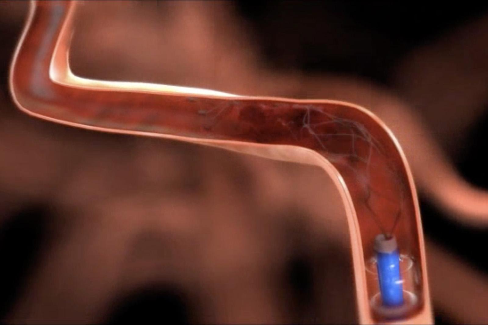 Trombectomía-Código-Ictus-Clínica-Rotger-Hospital-Mallorca