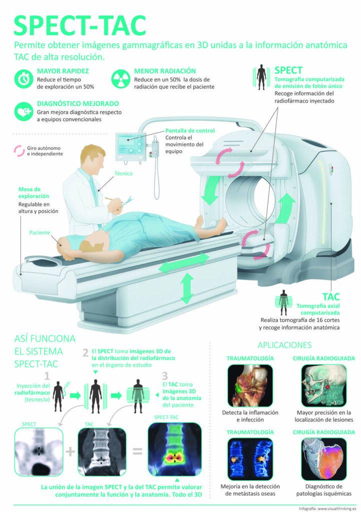 SPECT-TC-Clinica-Rotger-Hospital-Mallorca-2