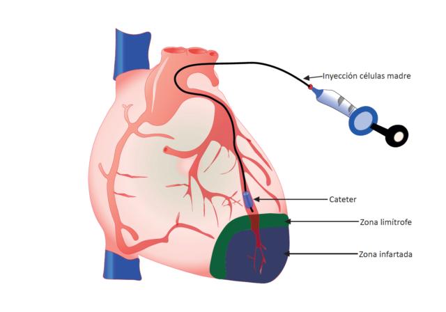 Inyección de células madre en la zona infartada, mediante un cateterismo